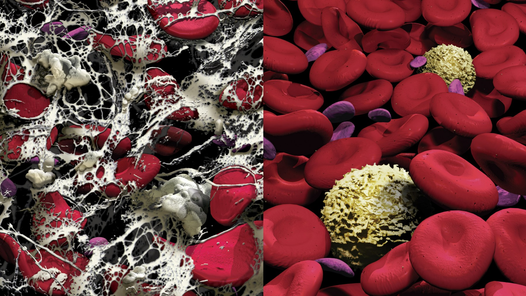 BLOOD CLOT & HEALTHY BLOOD CELL