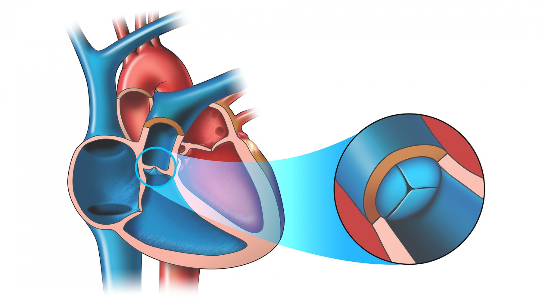 HEART AND PULMONARY STENOSIS